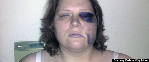 Megan Graham's face as a result from being beat by police officers